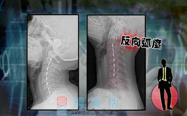长时间瘫坐不利于颈椎健康,这个它实际上改变了颈椎的生理弯曲