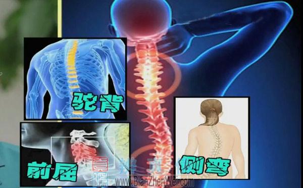 长时间瘫坐不利于颈椎健康,就会导致我们骨骼的,永久性的一种畸形,譬如在临床上发现颈椎的前屈,驼背脊柱的侧弯等等