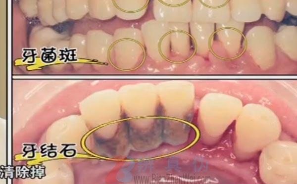 牙龈出血是因为体内缺少维生素C是网络谣言。是牙周疾病最早期的一个信号——辨真伪网