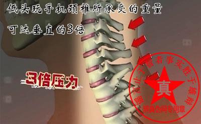 低头玩手机颈椎所承受的重量可达垂直的3倍是真的——辨真伪网