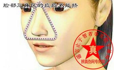 脸部三角区的痘痘不能挤是真的——辨真伪网