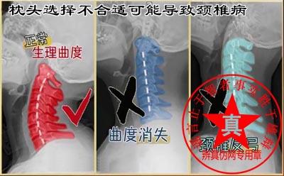 枕头选择不合适可能导致颈椎病是真的。如果您长时间睡觉起来都觉得颈椎不舒服,不妨调整下枕头的高度或者到医院做相关的检查——辨真伪网