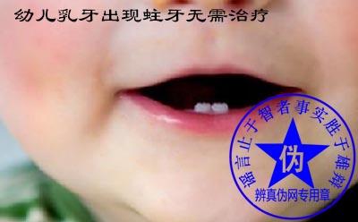 幼儿乳牙出现蛀牙无需治疗是网络谣言——辨真伪网