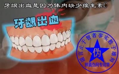 牙龈出血是因为体内缺少维生素C是网络谣言——辨真伪网